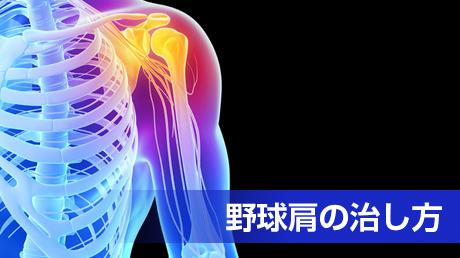 野球肩を治す方法 - 投げて痛めた肩の治し方講座